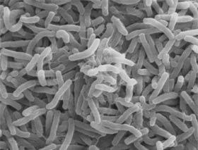Example: Cholera bacteria