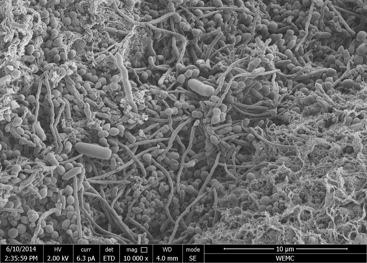Granular chain elongation sludge consists of various microorganisms